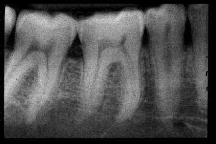 Интраорална сегментна рентгенография в София - МДЛ 3В - Рентген