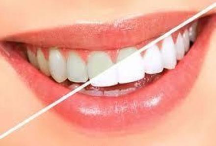 Избелване на зъби цени във Варна   - Дентален център Варна