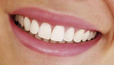 Избелване на зъби в Казанлък - Доктор Даниел Нанев