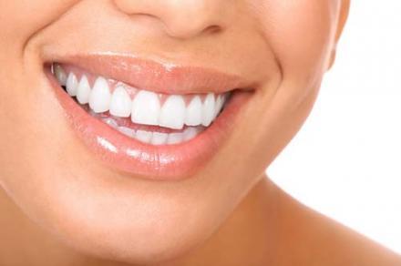 Избелване на зъби в Козлодий - Доктор Мариана Иванова