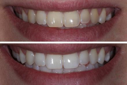 Избелване на зъби в София-Красно село - ЦДМ проф. Кисов