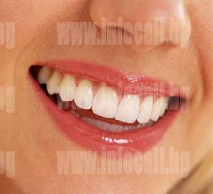 Избелване на зъби в София-Подуяне - Доктор Надежда Тодорова Браткова