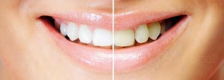 Избелване зъби Благоевград - Дентален център доктор Корчев