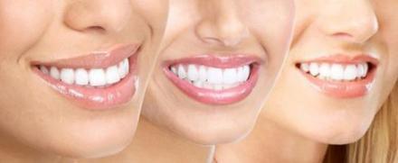 Избелване зъби в Силистра - Доктор Петя Павлова