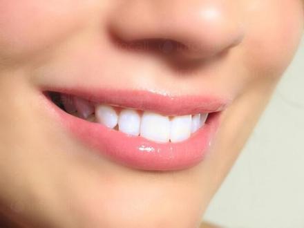 Избелване зъби в София-Център - Доктор Ирена Хасара