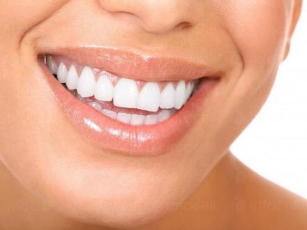 Лазерно избелване на зъби в София-Младост 1 - Д-р Зоя Попова и Д-р Иван Попов