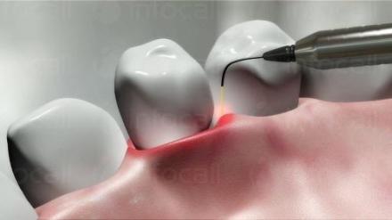 Лазерно лечение на зъби в Русе - Дентална клиника Дукови