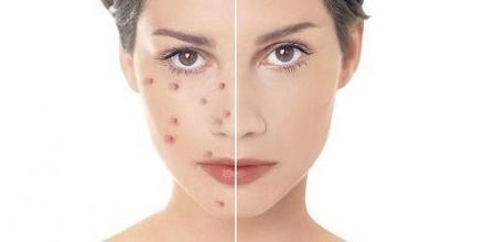 Лечение кожни заболявания в Търговище - Дерматовенеролог Търговище
