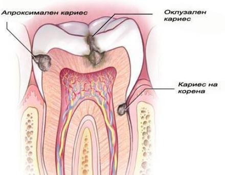 Лечение на кариеси в Бургас - Доктор Боряна Колева