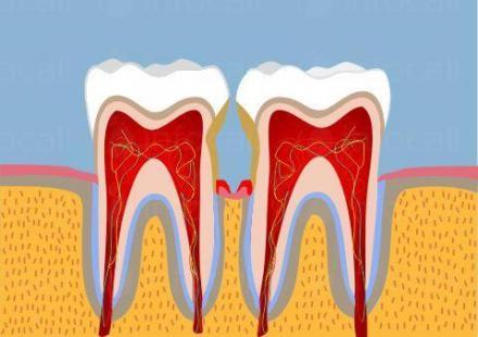 Лечение на пародонтит в Силистра - Стоматолог Силистра