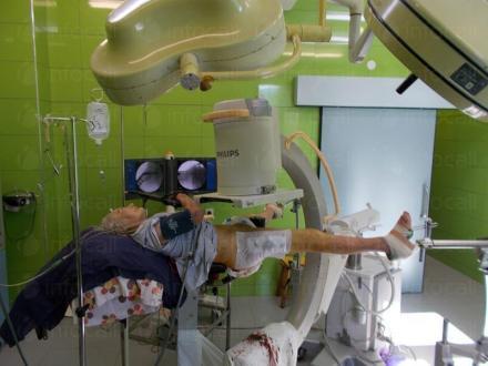 Лечение на счупвания в София - Ортопедична болница ВИТОША