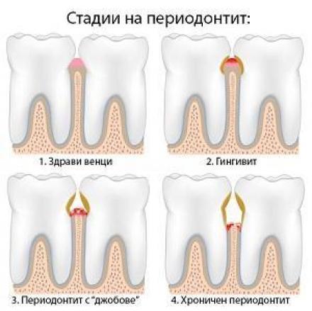 Лечение на венци в Ямбол - Стоматолог Ямбол