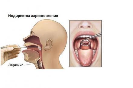Лечение рак на ларинкса - Професор д-р Спас Консулов