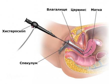 Оперативна хистероскопия в София-Лозенец - Медицински център Салвебис
