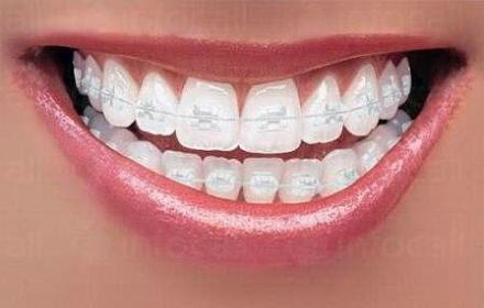 Ортодонтия в Русе - Дентална клиника Дукови