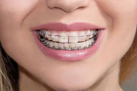 Ортодонтия за деца и възрастни в София - Специализиран ортодонтски кабинет