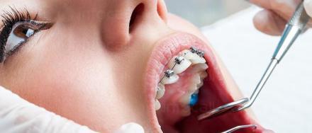 Ортодонтското лечение в град Кърджали - Дентална клиника Минев