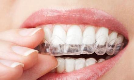 Почистване на зъбен камък с ултразвук в Ямбол - Д-р Мариана Дучева Георгиева