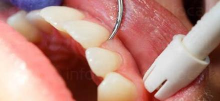 Почистване на зъбен камък в Ямбол - Стоматолог Ямбол