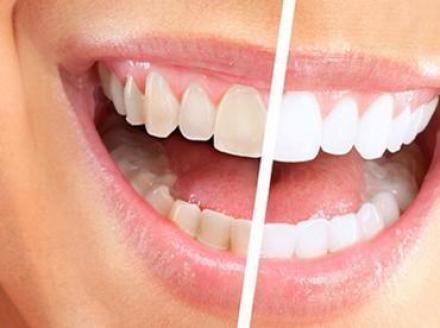 Почистване зъбен камък в Силистра - Доктор Петя Павлова