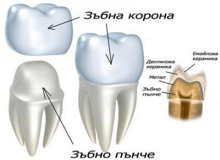 Поставяне на зъбни коронки и мостове в Ямбол - Доктор Жулиета Симеонова