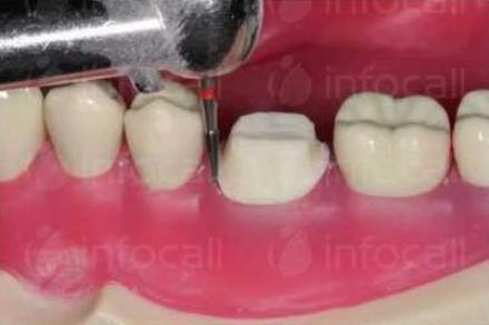 Поставяне зъбни коронки и мостове в Ямбол - Стоматолог Ямбол