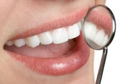 Поставяне зъбни мостове и коронки в Силистра - Доктор Петя Павлова