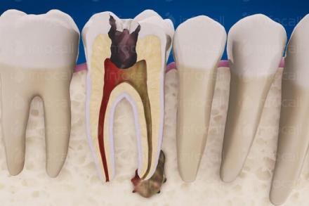 Стоматологични услуги Варна-Приморски - Стоматологична клиника Доктор Цветкова