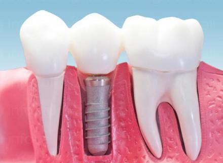 Зъбна имплантология Благоевград - Дентален център доктор Корчев
