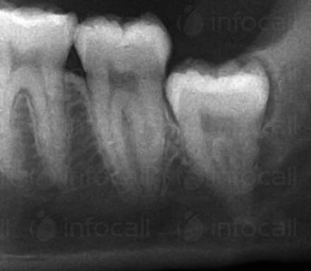 Зъбни снимки в София-Бели Брези - Стоматолог София-Бели Брези