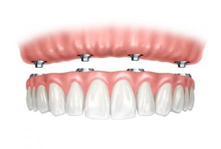 Зъбопротезиране в Силистра - Стоматолог Силистра